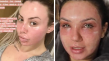 The terrifying $5k facial reality stars are trying