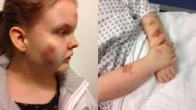 Autistic girl left 'bruised' and swollen in high school restraint
