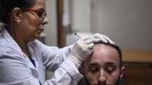 El aceite de sándalo puede evitar la caída del pelo, según un estudio