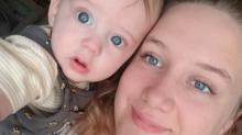 Bambino di 7 mesi ustionato nel sonno dal suo ciuccio