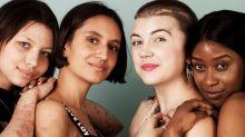 Fotógrafa celebra cicatrizes e diferentes biótipos em projeto