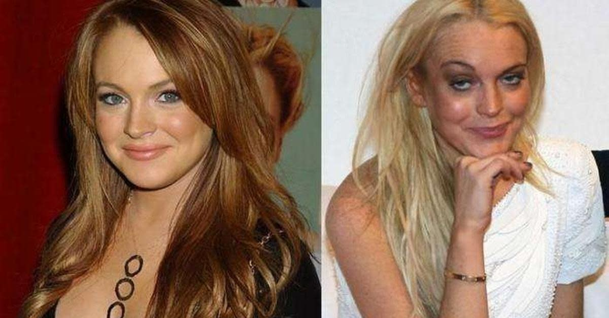 Celebs That Aged So Bad Your Skin Will Crawl
