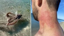 'Came after me': Man 'whipped' by octopus at popular beach