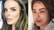 Aussie model recounts horror fall down stairs after seizure