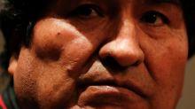 Morales no será candidato en las elecciones en Bolivia, dice legislador de su partido