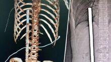 Operário cai sobre barra de ferro, que se aloja a 3cm do coração