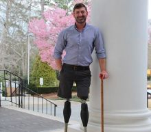 I lost both my legs fighting in Afghanistan. Staying there doesn't honor our troops.