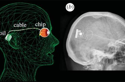 Microchip implant lets blind patients see shapes, skip the prosthetic