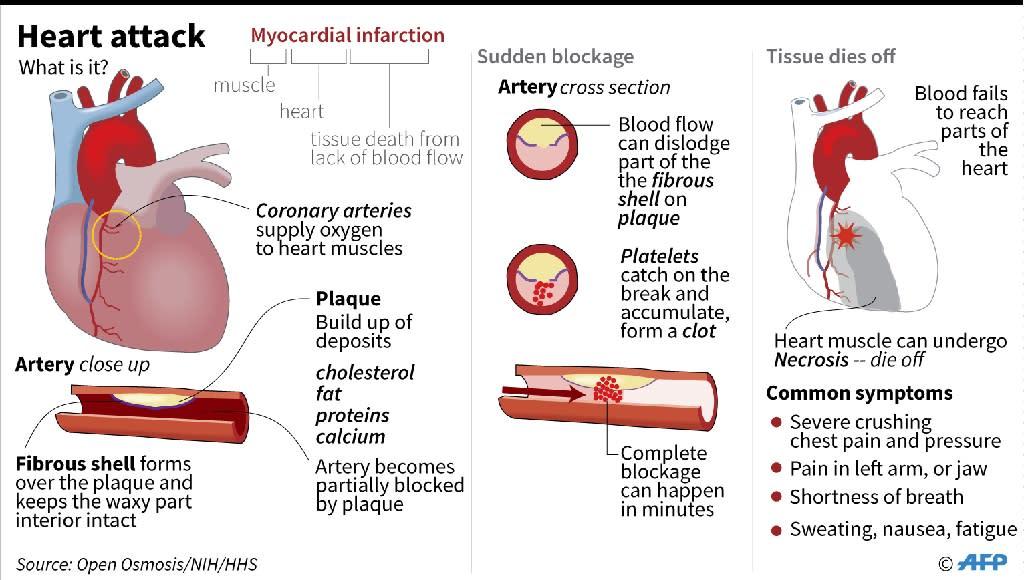 Factfile on heart attacks (AFP Photo/John SAEKI)