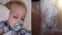 Boy, 2, hospitalised after disturbing find in stomach