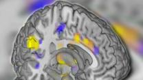 Doctors Use Brain Scans to 'See' Pain