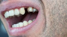 Documentário da Netflix orienta retirada de dentes e deixa dentistas em pânico