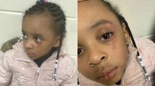 Mom says teacher hit 5-year-old daughter in the eye with a ruler