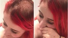 Blogger with cervical cancer shares candid photos of hair loss on Instagram