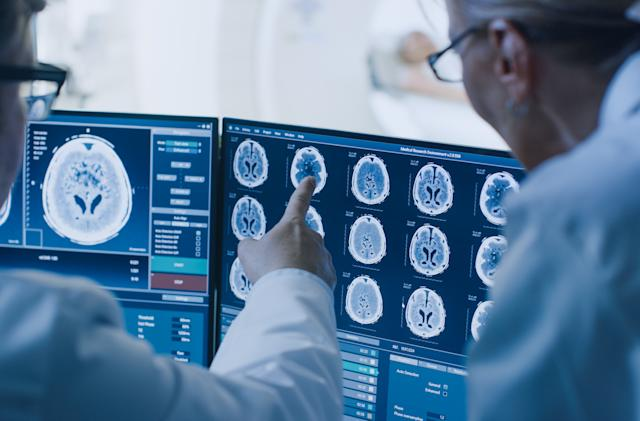 Intel and Penn Medicine are developing an AI to spot brain tumors