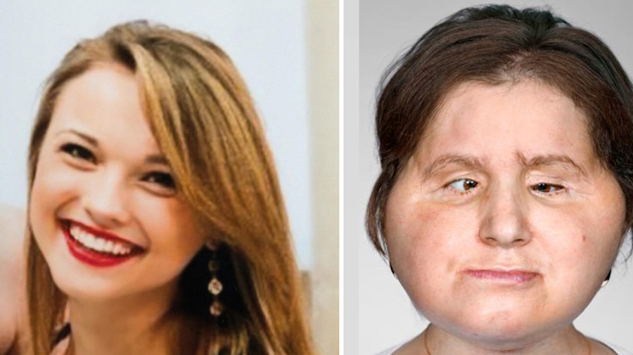The tragic story behind woman's remarkable face transplant