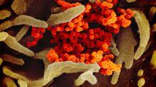 Imágenes microscópicas del coronavirus COVID-19 que ha desatado la alerta mundial