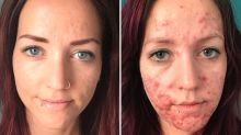 'I'd just sit and cry': Woman's before-and-after acne photos show her 'painful' journey