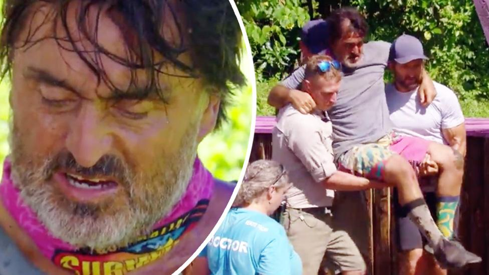 'The rope broke': Survivor contestant suffers horrific injury after freak accident