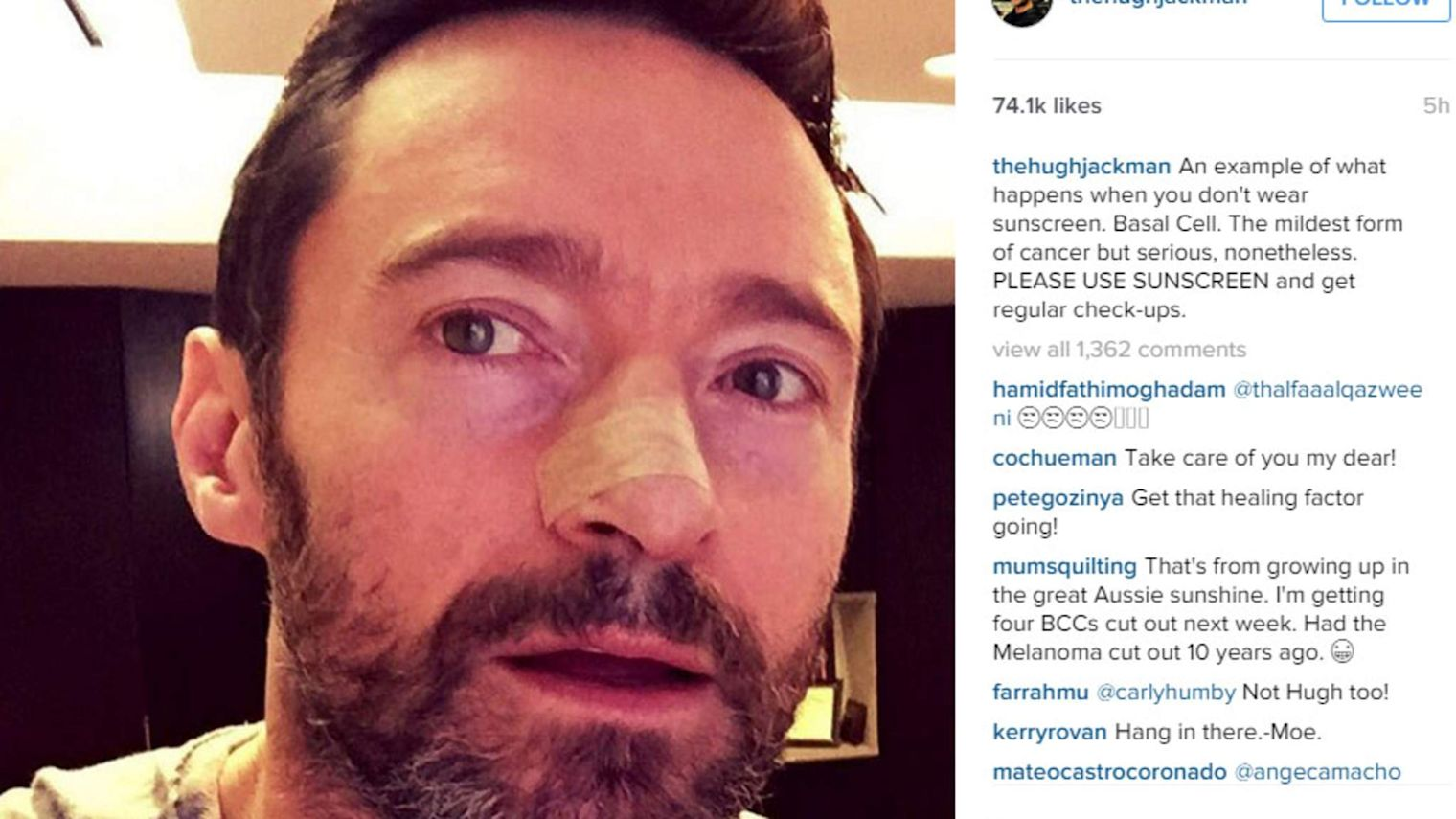 X-Men Actor Has Cancer Growth Removed From Nose