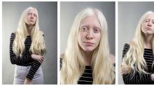 FOTOS | Día Internacional de Sensibilización sobre el Albinismo: 9 imágenes para derribar prejuicios y estereotipos