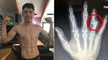 MMA fighter reveals sickening injury suffered mid-fight