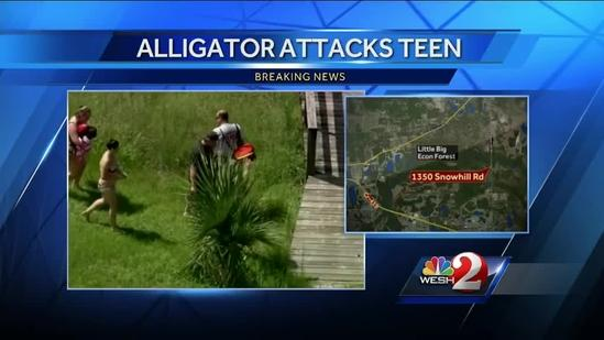 Boy, 17, suffers gator bite to head