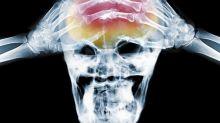 Une avancée majeure dans le traitement de la migraine