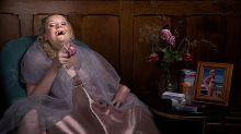 Fotografa faz série de imagens com pessoas que possuem doenças raras