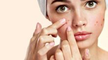 Acne On Your Mind? These 20 Preventive Tips Will Help You Get Clear Skin