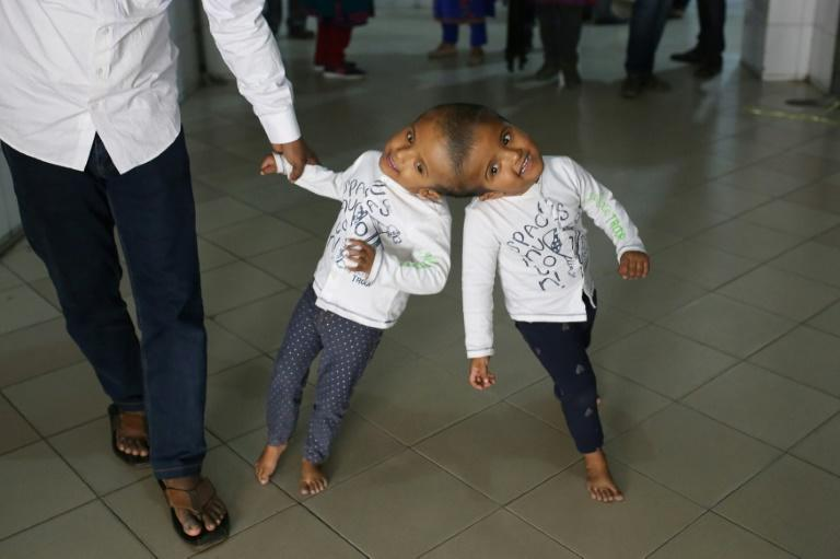 Hungarian doctors separate Bangladeshi twins joined at head
