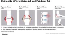 How Cosentyx Resolves Enthesitis in Psoriatic Arthritis Patients