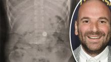 MasterChef judge shares scary find in son's X-Ray