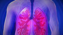 Conheça alguns sinais silenciosos que podem indicar problema de pulmão