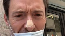 Hugh Jackman Gets Skin Biopsy on His Nose: 'Don't Be Like Me as a Kid — Just Wear Sunscreen'