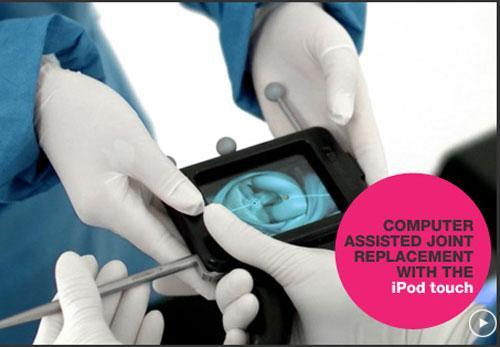 Mumbai surgeons perform knee surgery replacements using an iPod touch
