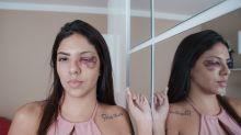 PM cegou Gabriela, 16, negou socorro e depois riu dela