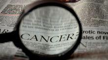 Sejak Kemunculan COVID-19, Pemeriksaan Kanker Turun 40 Persen karena Pasien Takut ke RS