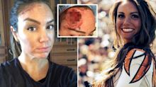 The popular activity which caused a huge hole to appear in woman's head