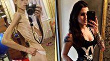 Jovem vence a anorexia e se torna musa fitness