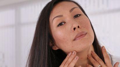 Saiba como evitar a acne adulta