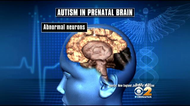 Report: Autism May Begin Developing In Infants During Pregnancy