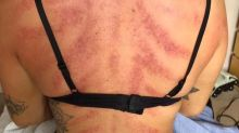 Painful looking photo reveals how a hairdresser's job impacts her body