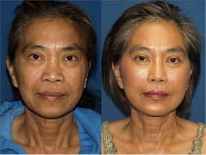 Think, asian photo rhinoplasty sorry