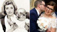 """Noiva que nasceu com grave deformidade vive seu dia de """"felizes para sempre"""""""