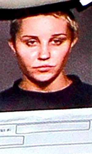 Amanda Bynes Gets More Plastic Surgery — All Because of Her Mug Shot