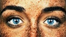 British Photographer Showcases the True Beauty of Freckles