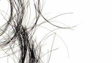 La calvicie podría ser un signo de cáncer