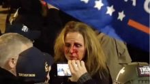 MAGA protester punched by Black woman security guard fired by UMass Hospital