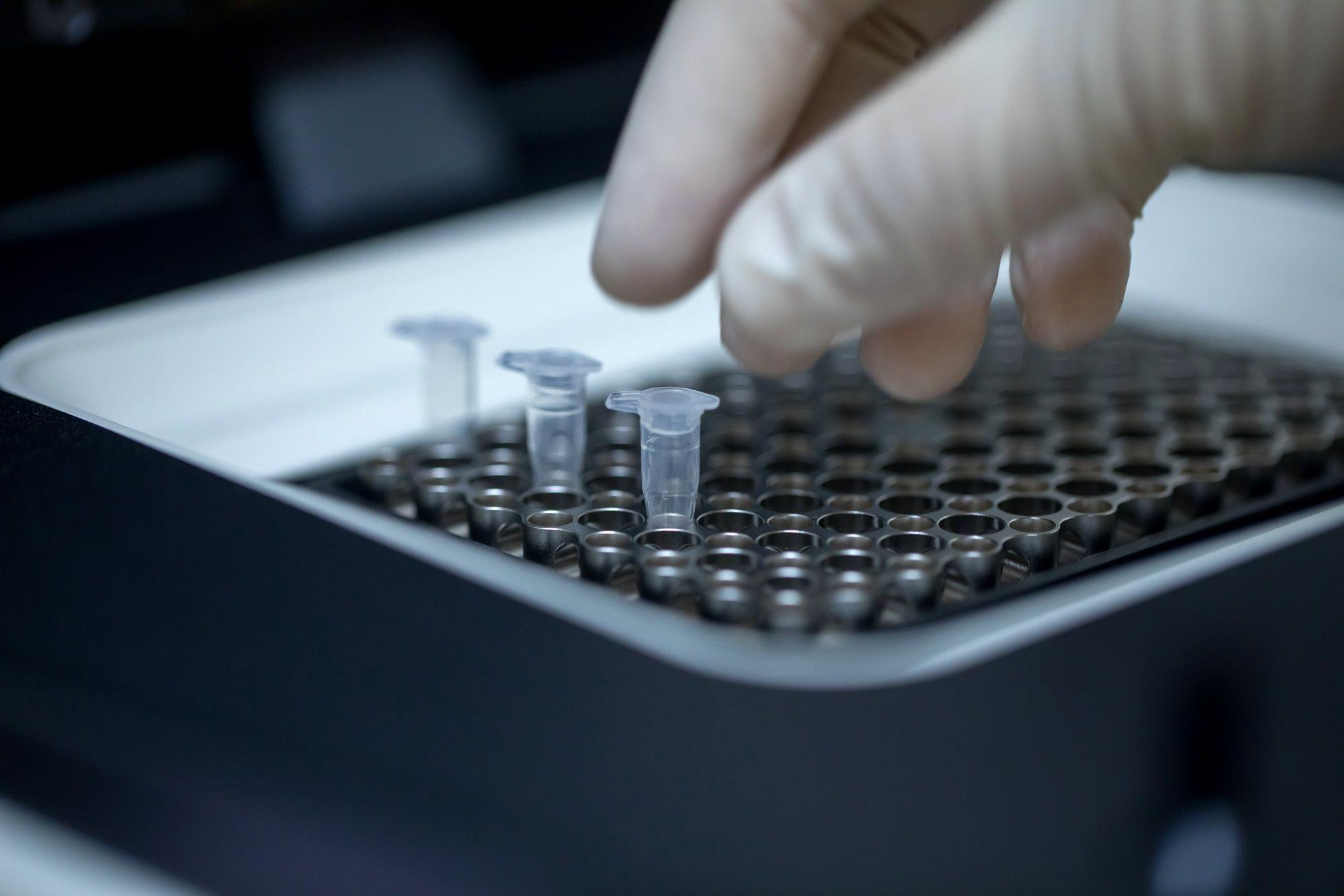 Exact Sciences Said to Approach Invitae About Merger
